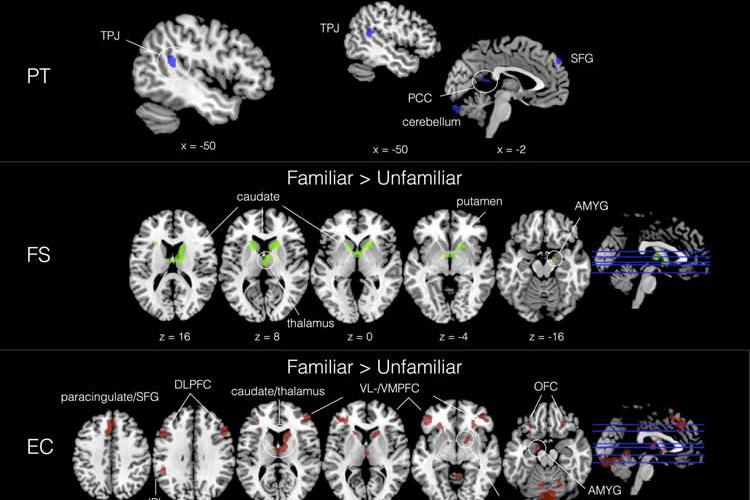 Higher Empathy People Process Music Differently in the Brain