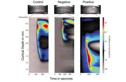 images show depolarization spreading in the brain