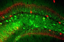 hippocampal neurons are shown