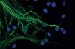 mitochondria and neurons