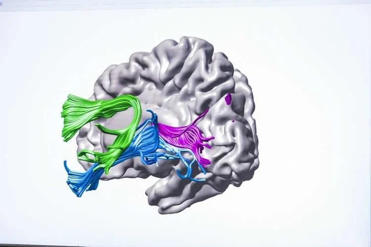 a brain is showb