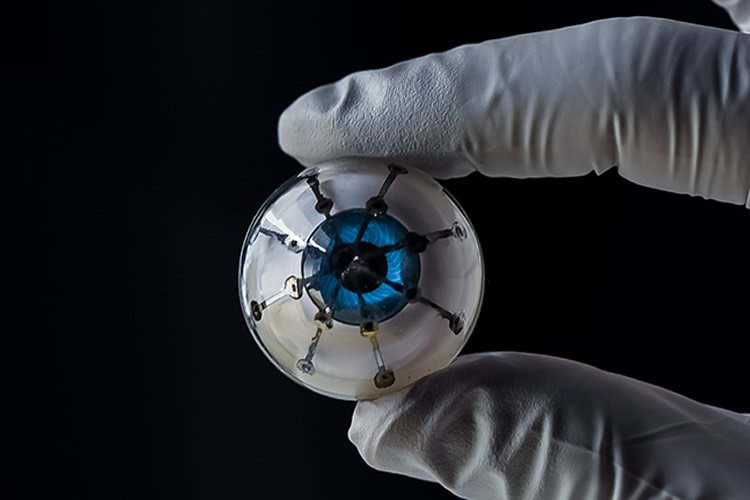 the bionic eye