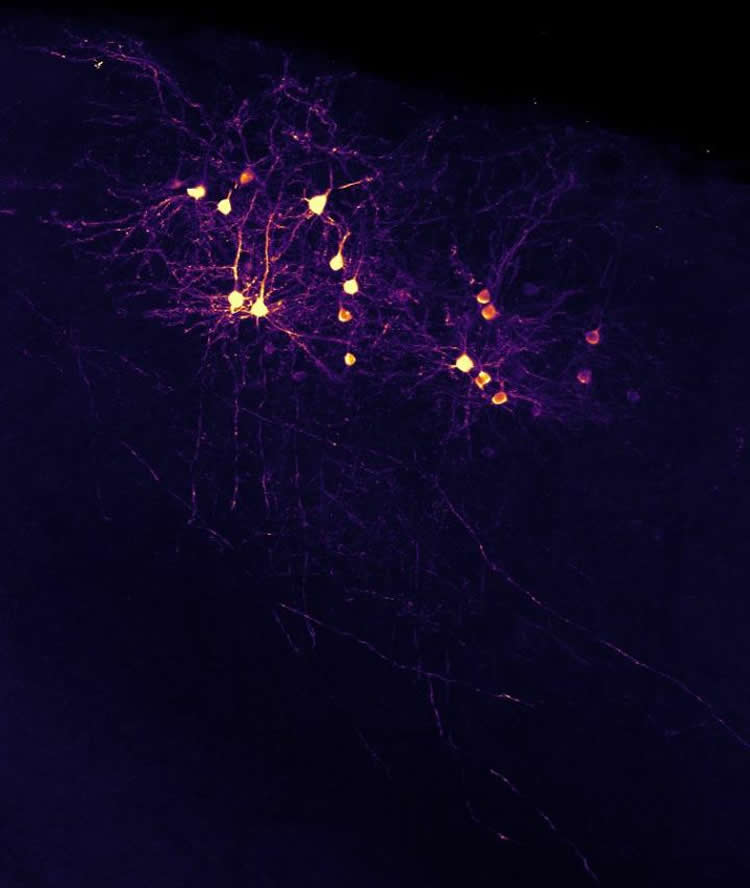 visual cortex neurons