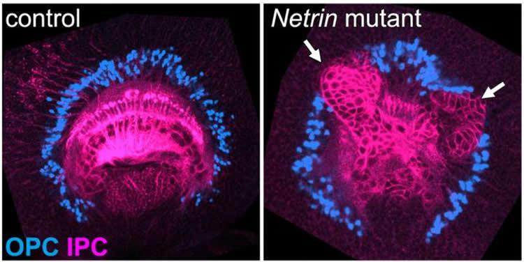 A Protein that Divides the Brain - Neuroscience News
