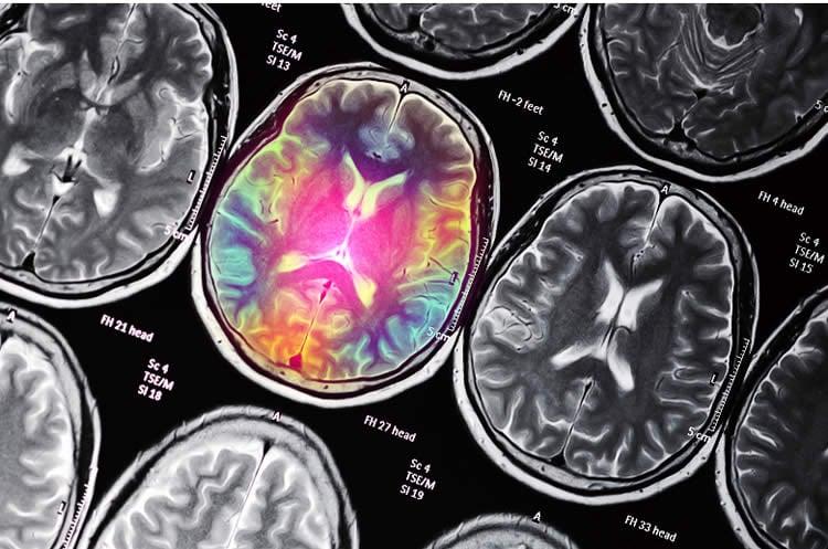 colored brain scan