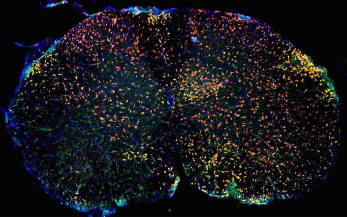 a brain with immune cells stained