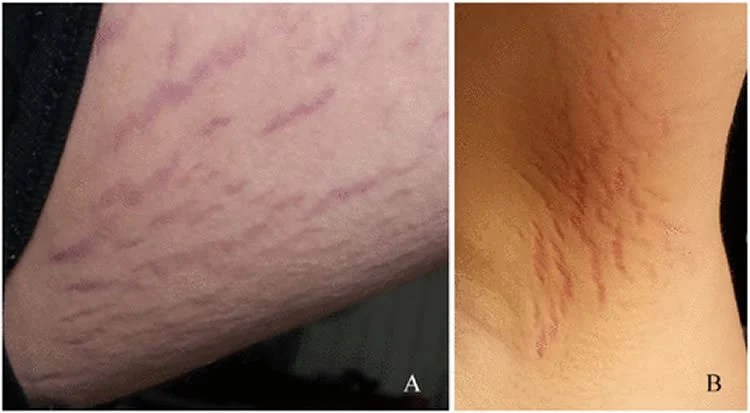 this shows how the bartonella infection looks on the skin