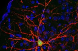 neurons are shown in this image