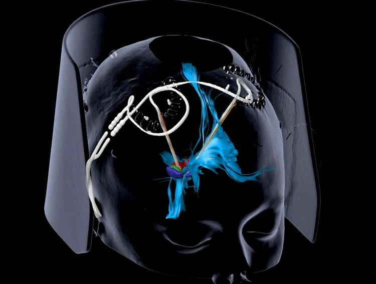 Deep brain stimulation provides sustained relief for severe depression