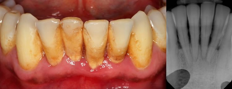 these are a set of teeth and gums.