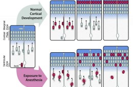 Image is a diagram showing how anesthesia disrupts neurodevelopment