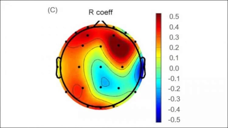 This shows an EEG readout from the study
