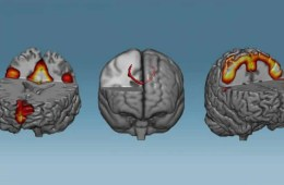 this shows the corpus callosum in the brain