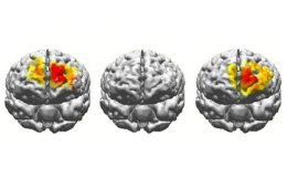 This shows brain scans of the regions the electrostimulation targets