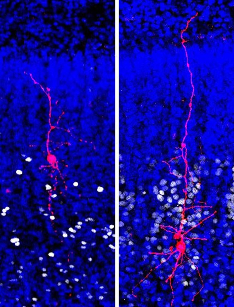 this shows cortical neurons