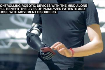 This shows the robotic arm