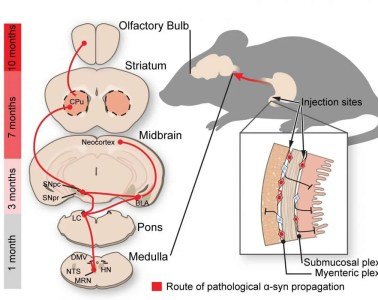 This diagram shows how a-synuclein travels from the gut to the brain via the vagus nerve
