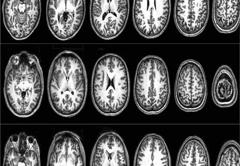 This shows the brain scans from the terrorists