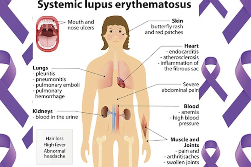 This diagram shows how lupus affects the body