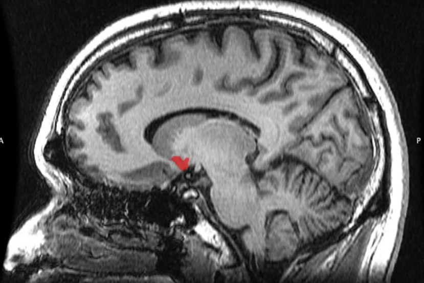 This shows the location of the nucleus accumbens in the brain
