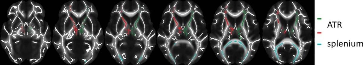 This shows brain scans
