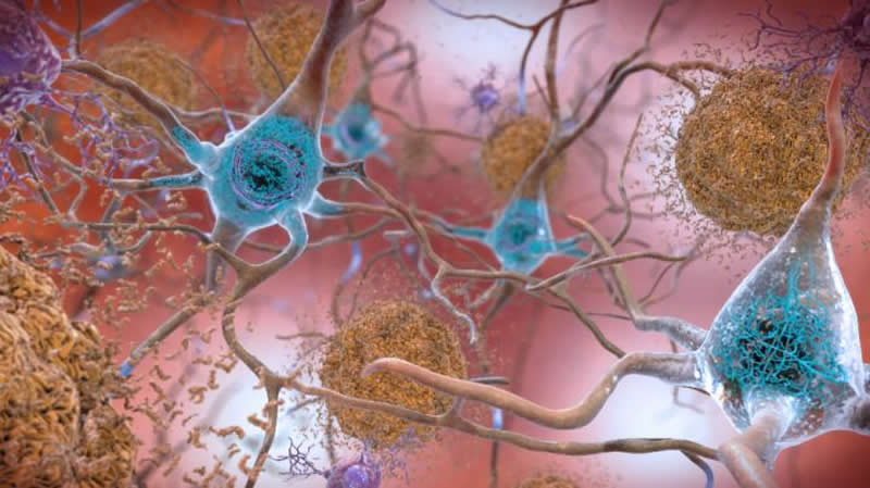This is an illustration of amyloid beta in neurons