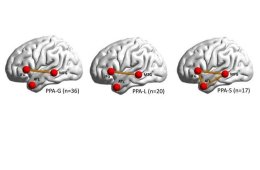 This shows the location of the brain networks