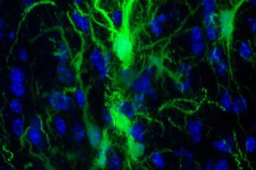 This shows neural stem cells