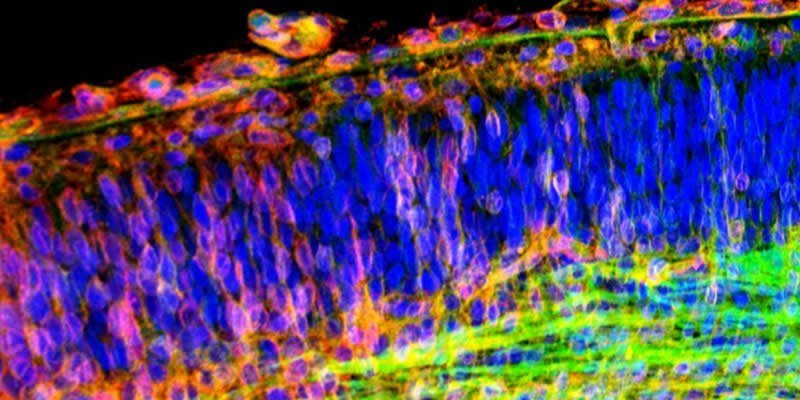This is a hippocampal brain slice