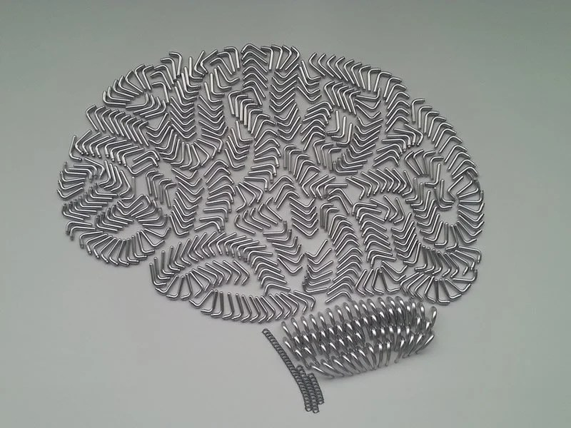 This shows a brain