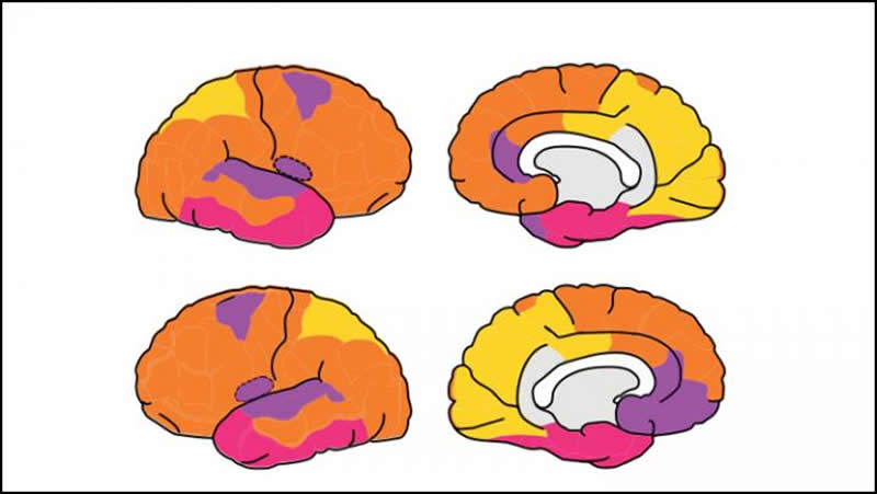 This is a diagram of the brain