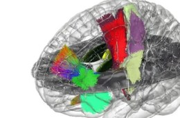 This shows a brain map