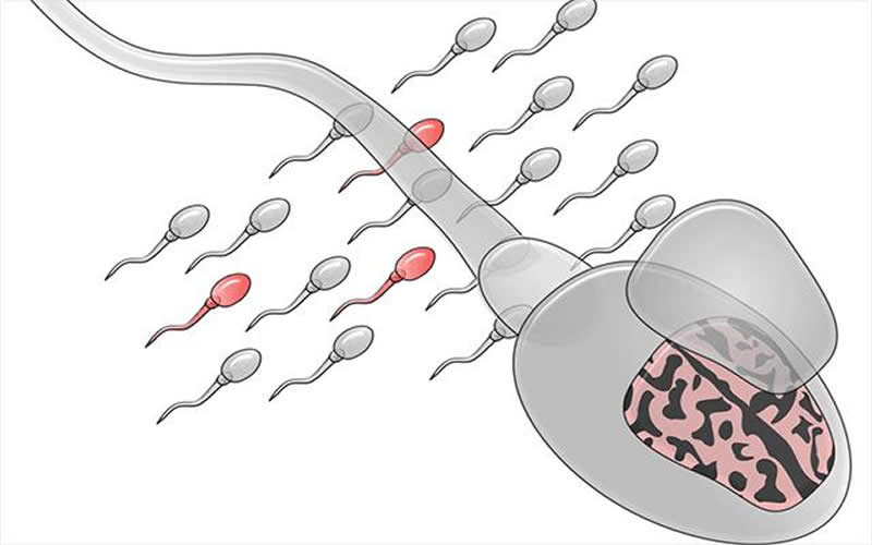 This is a drawing of sperm