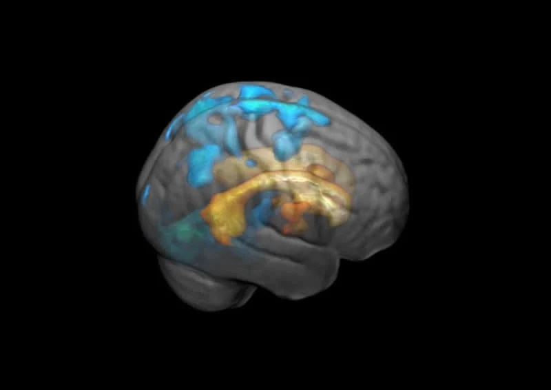 This shows a brain scan from the study