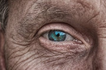 This shows an old man's eye