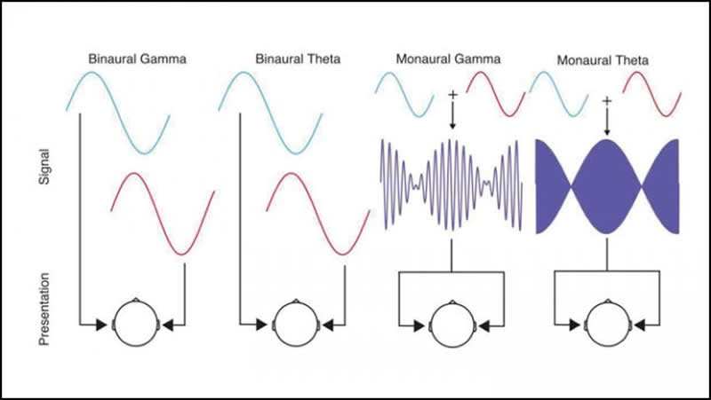 This shows sound waves