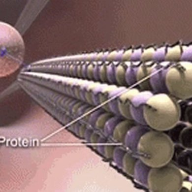 This is a drawing of the Tau protein