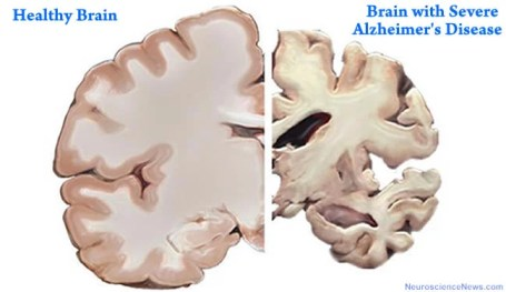 A healthy brain slice is shown next to a brain slice with severe Alzheimer's disease. The healthy slice is much larger.