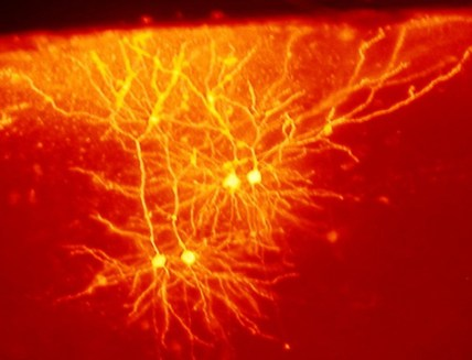 Brain Cell Communication SNARE Complex