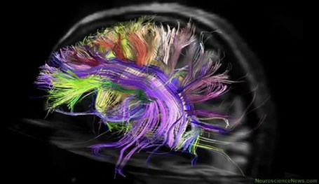 An image showing highlighted tracts in a brain image is shown.