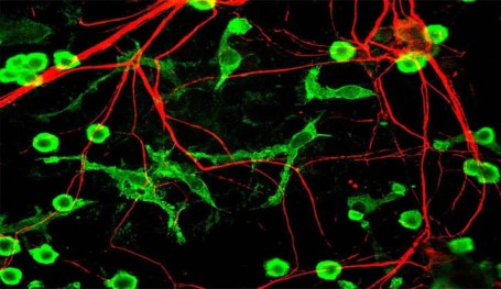 An image of neurons and microglia