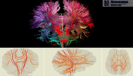 2 dimensional views of the human brain's neural connections are shown