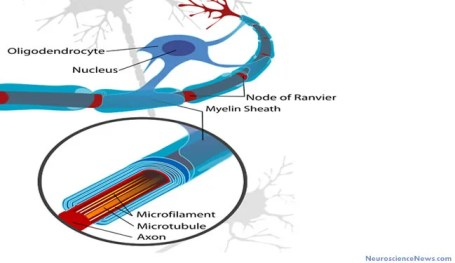Drawing of a neuron axon area with oligodendrocytes and myelin sheath labeled.