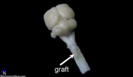 A rat brain is shown with a spinal cord graft pointed out.