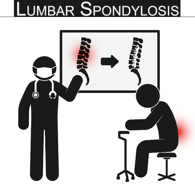 What is meaning of Lumbar spondylosis?
