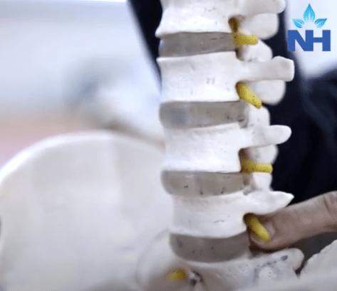 Lumbar disc surgery, Best Spine surgeon in Gurgaon