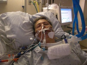 I was in a coma after my second liver surgery. This is where the tough get tougher!