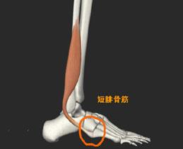 短腓骨筋腱付着部炎症箇所