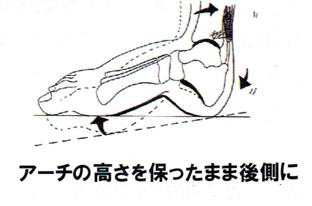 おう足とはアーチが非常に高い足です。