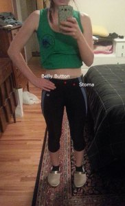 Ostomy bag inside exercise pants